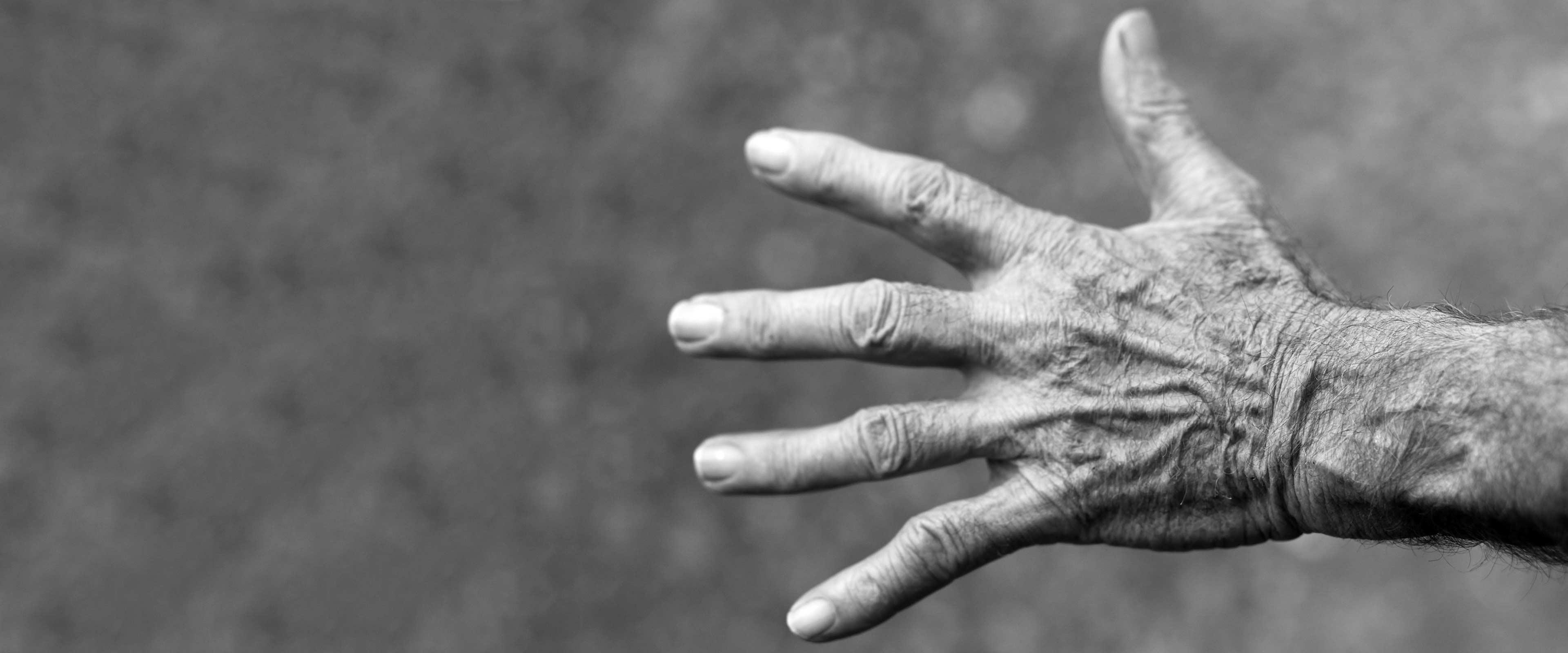 rheuma-arthritis-whatshealth